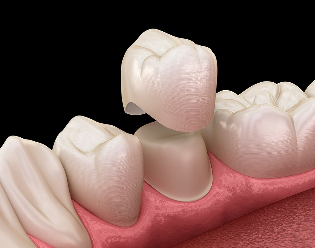 Colocación de coronas dentales