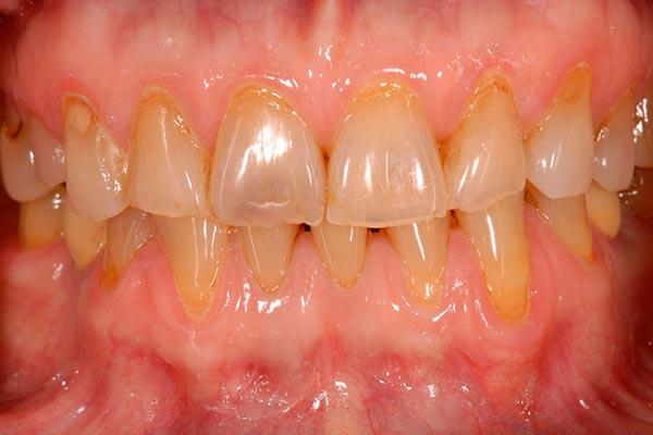 Caso clínico de carillas dentales. Clínica Dental Javier Sola. Antes