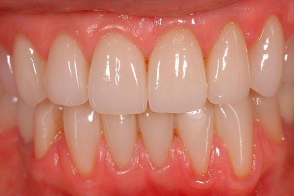 Caso clínico de carillas dentales. Clínica Dental Javier Sola. Después