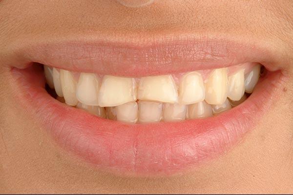 Paciente antes de ponerle carillas dentales en nuestra clínica dental de Valladolid