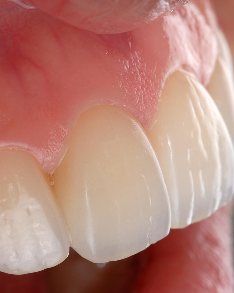 Poner carillas dentales en Valladolid