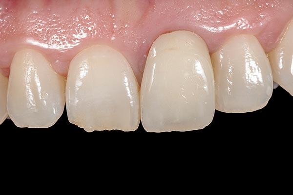 Caso clínico de Implantes Dentales. Antes