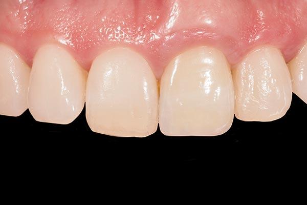 Caso clínico de Implantes Dentales. Después